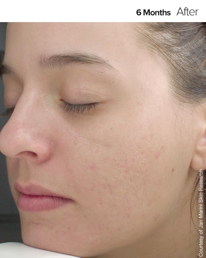 Skin Care Management System For Normal Combination Skin